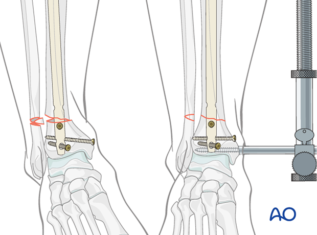 Nail insertion and reduction of a distal tibia fracture