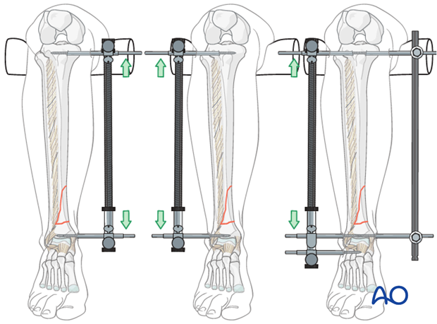 Large distractor positioning before intramedullary nailing to treat distal tibia fracture