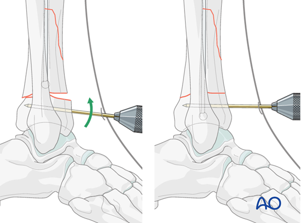 Pin (joystick) positioning before intramedullary nailing to treat distal tibia fracture