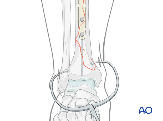 Distal tibia fracture reduction with percutaneous pointed reduction clamp
