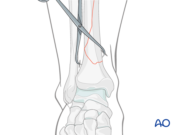 Treatment of undisplaced intraarticular distal tibia fracture