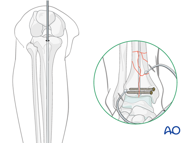 Guide wire for intramedullary nailing to treat distal tibia fracture
