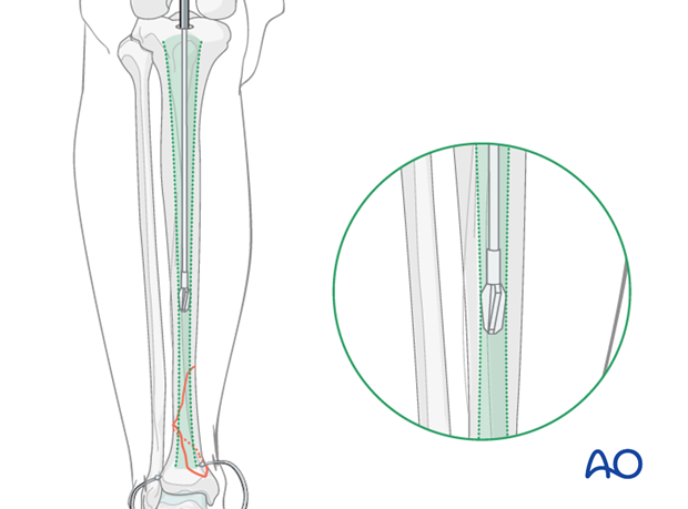 Tibia intramedullary reaming for nailing