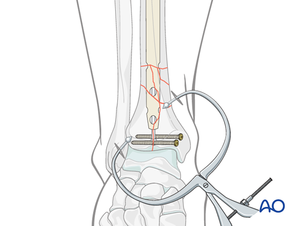Insertion of cannulated nail for distal tibia fracture fixation