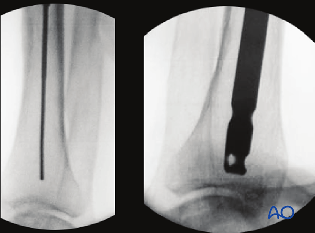 Fluoroscopic control of intramedullary nail positioning in distal tibia