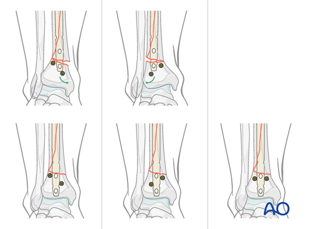 Use of Poller screw in tibial intramedullary nailing