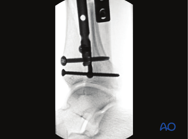 Radiographic example of treatment of undisplaced intraarticular distal tibia fracture