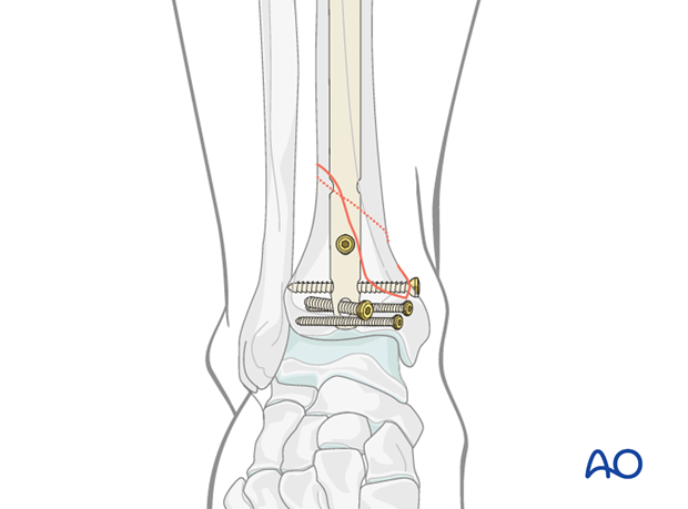 Distal locking in tibial intramedullary nailing