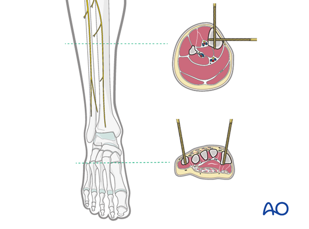temporary joint bridging triangular external fixation