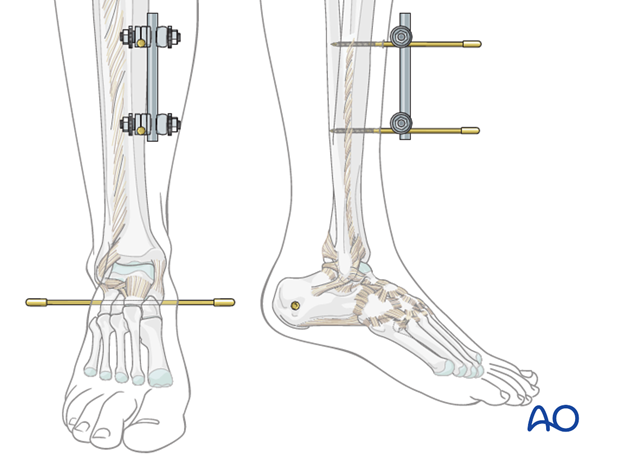 Tibial frame construction for triangular external fixation