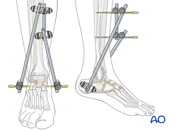 Tibiocalcaneal frame construction for triangular external fixation