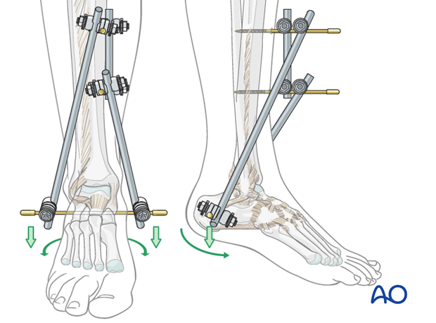 Tibial fracture reduction with triangular external fixation