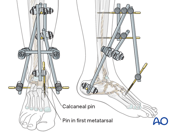 Joint-bridging triangular external fixation in the distal tibia