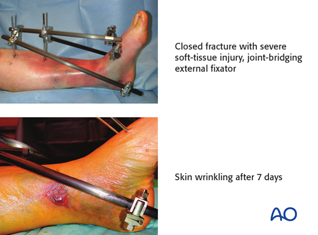Example of closed fracture with severe soft-tissue injury, joint-bridging external fixator