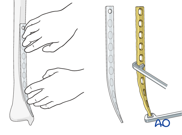 Plate contouring for internal fixation of distal tibia fracture