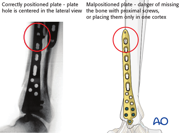 Proximal plate placement in distal tibia fracture