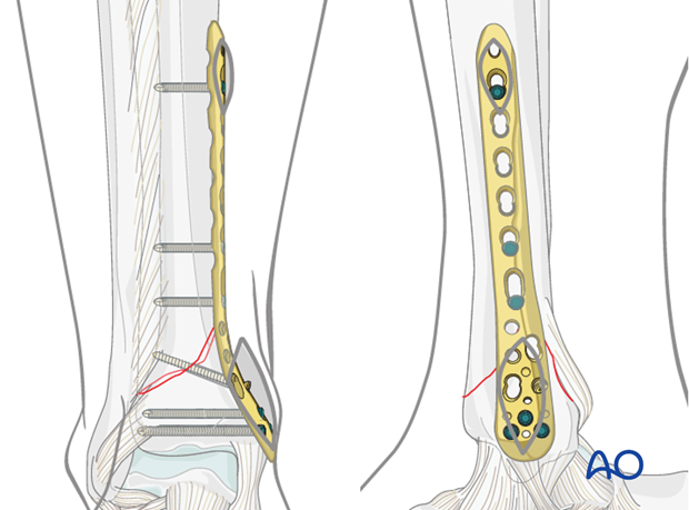 Definitive plate fixation to treat distal tibia fracture