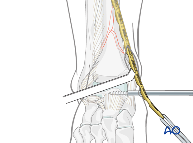 MIO plate insertion to treat distal tibia fracture