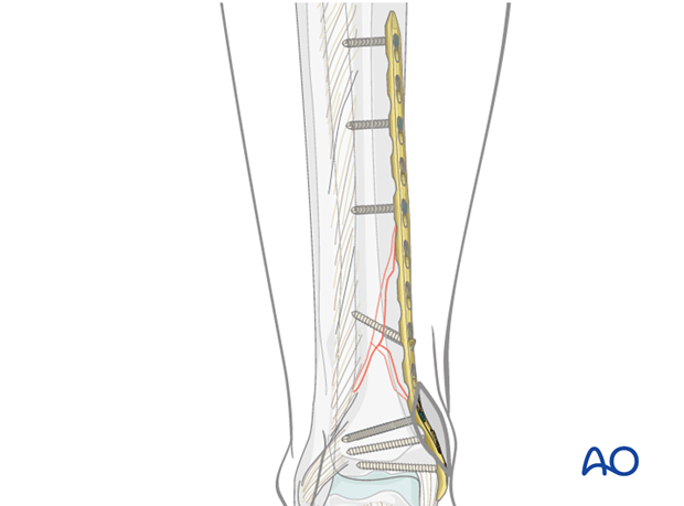 Screw positioning for distal tibia MIO