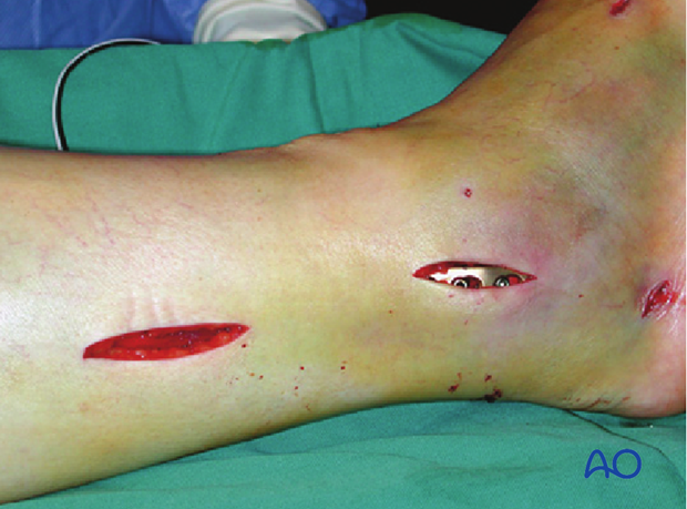 Fixation of the fibula