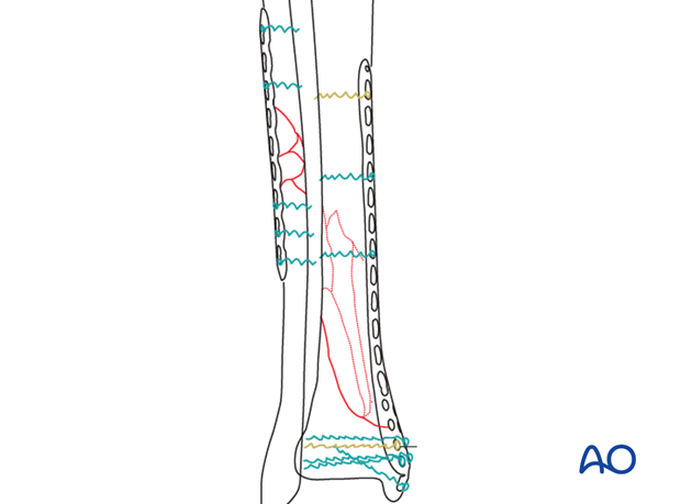 Preoperative planning for treatment of distal tibia fracture