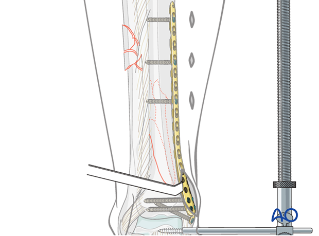 Screw insertion for plate fixation to treat distal tibia fracture