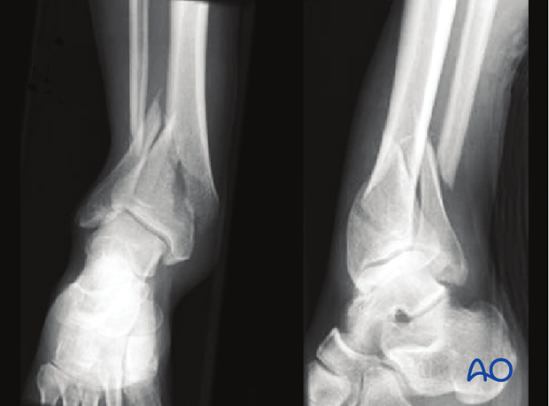 Radiographic example of extraarticular distal tibia fracture