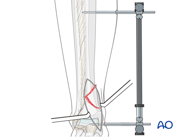 Indirect reduction of distal tibia fracture with a distractor