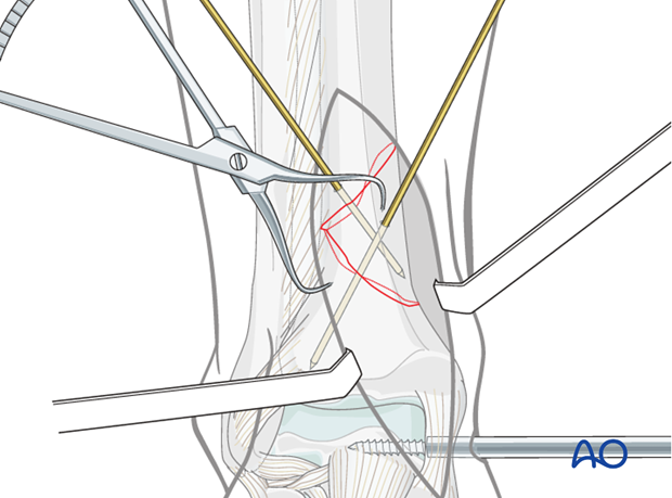 Direct reduction of distal tibia fracture