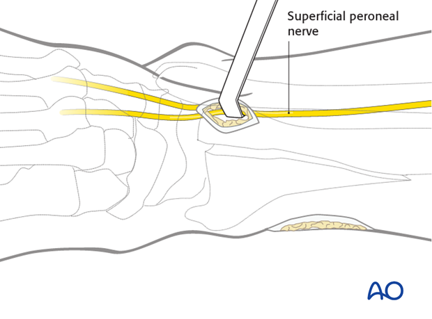 Distal anterolateral approach to the distal tibia