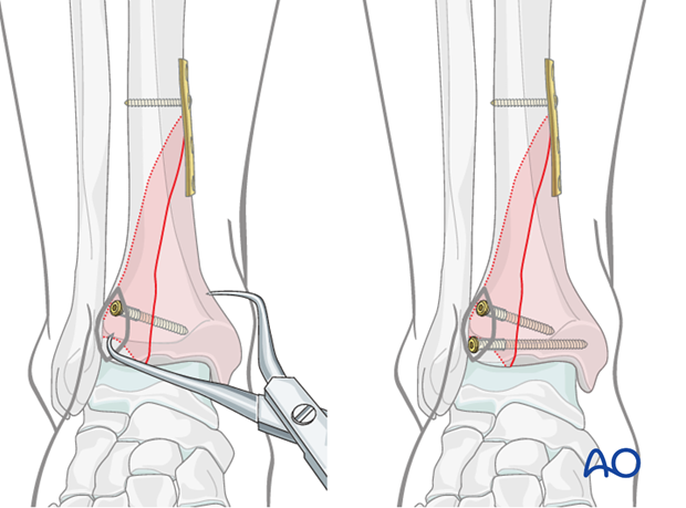 Lag screw positioning to treat a pure split fracture of the distal tibia