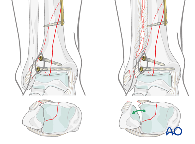 Suprasyndesmotic fibulotibial screw to stabilize the ankle mortise