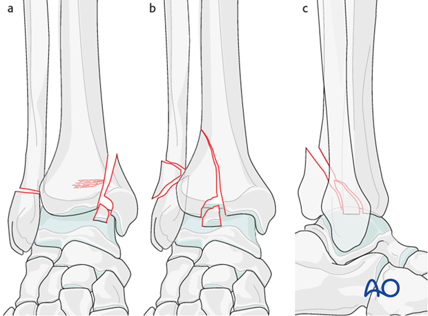 Partial articular distal tibia fracture