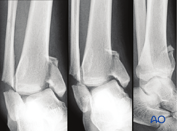 Radiographic example of pure split fracture of the distal tibia