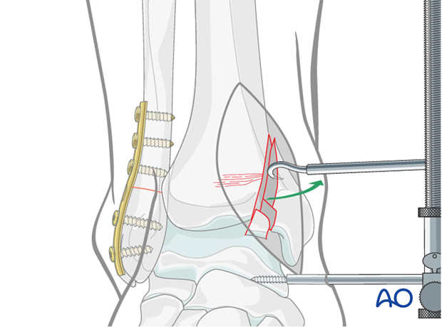 Joint exposure to treat a split depression fracture of the distal tibia