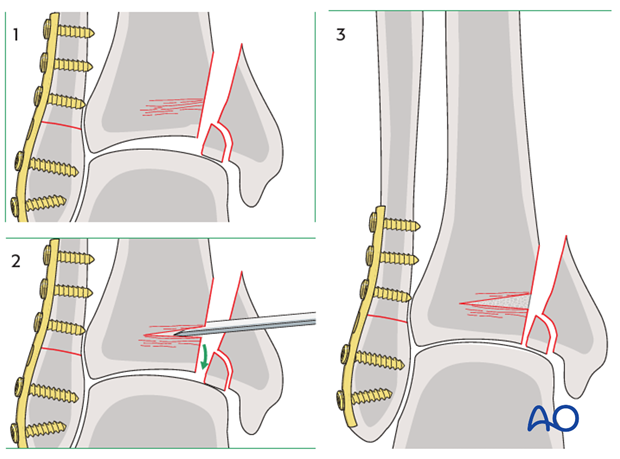 Reduction of impacted segment of a split depression fracture of the distal tibia