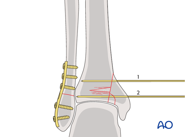 Temporary stabilization of impacted segment of a split depression fracture of the distal tibia