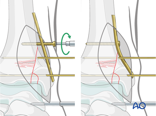 Medial buttress plate positioning to fix a split depression fracture of the distal tibia