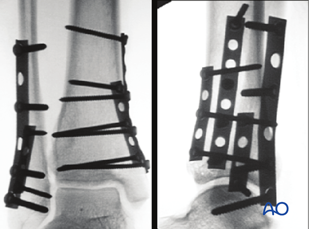 Intraoperative x-rays showing fixation of a transverse fracture of the lateral malleolus and a vertical fracture of the medial distal tibia