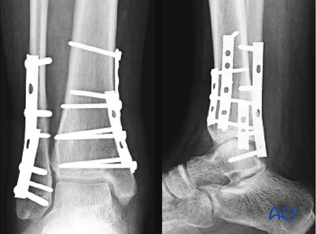 Postoperative x-rays showing fixation and healing of a transverse fracture of the lateral malleolus and a vertical fracture of the medial distal tibia