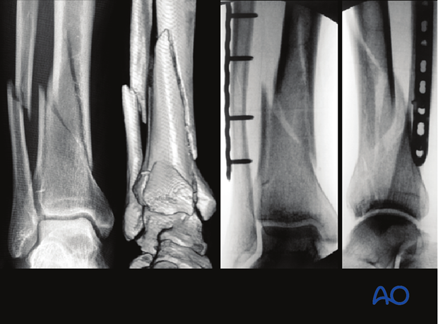 Radiograph of fibula and distal tibia fracture treated with plate fixation
