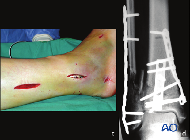 Fixation of distal tibia and multifragmentary fibular fracture