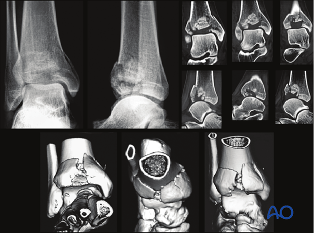 Preoperative imaging of a partial articular, depression fracture of the distal tibia