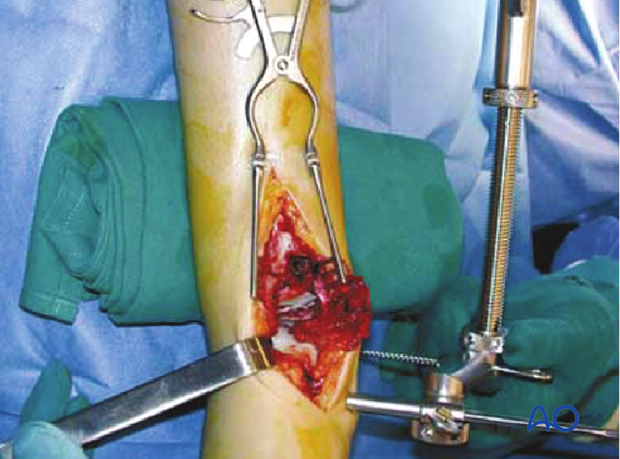 Application of a large distractor in a distal tibia fracture