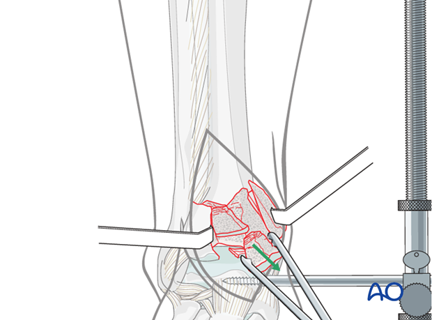 Removal of central fragment of a depression fracture of the distal tibia