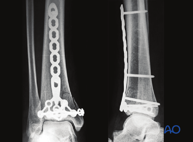 Partial articular, depression fracture of the distal tibia treated with buttress plate and lag screws