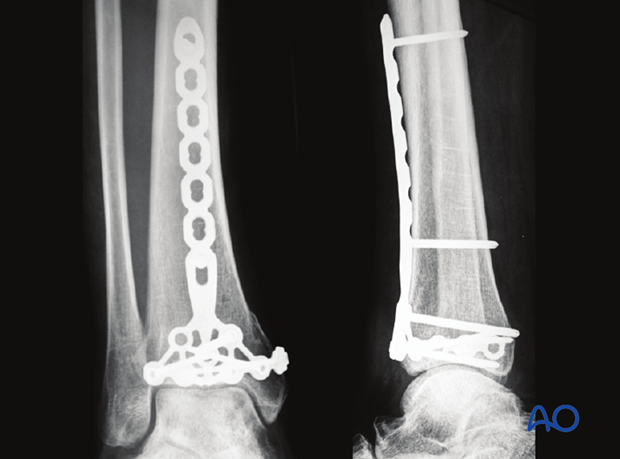 Radiographic example of plating of a distal tibia fracture at 3 months postoperative