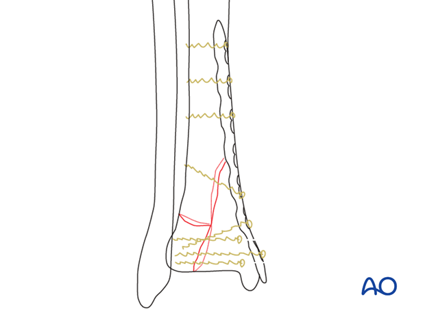 Preoperative planning to treat a complete articular, simple fracture of the distal tibia