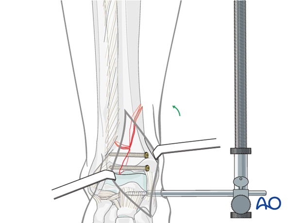 Adjusting distractor tension in a complete articular, simple fracture of the distal tibia