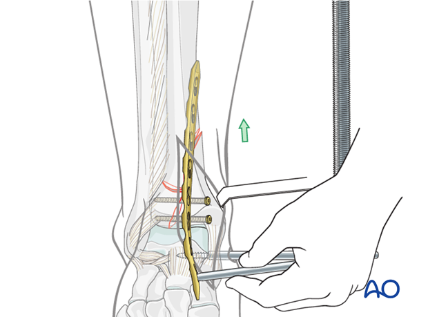 Plate insertion to treat distal tibia fracture
